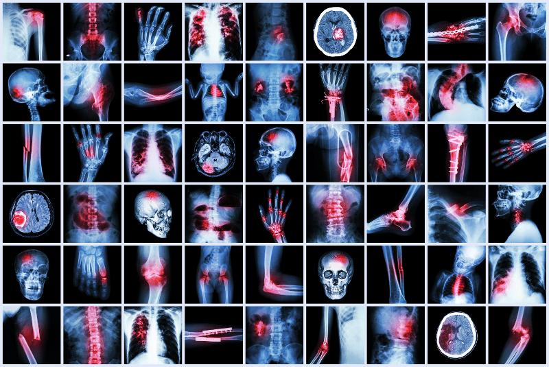 Doppler-сонографска оценка на синовита при пациенти с ревматоиден артрит
