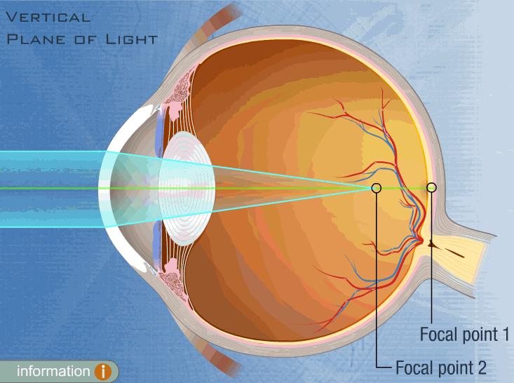 deplasarea focalizării laserului oftalmic)