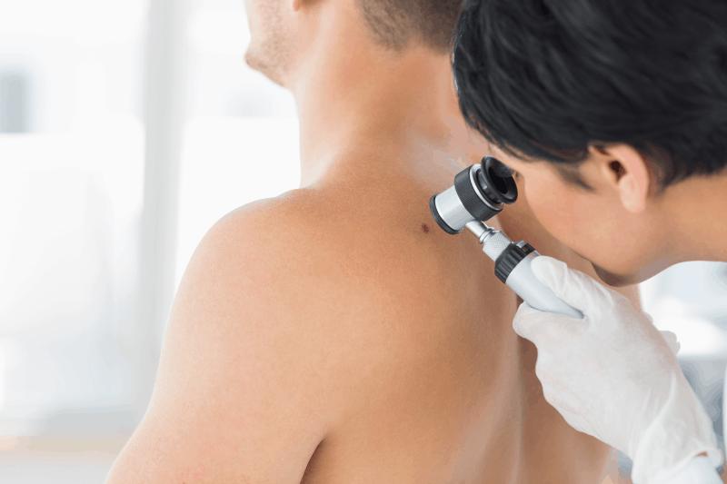 Клиничен случай на пациент с метастатичен меланом