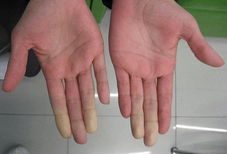 Грешки в диагностиката на синдрома на Гужеро-Сьогрен или пътят към точната диагноза на заболяването