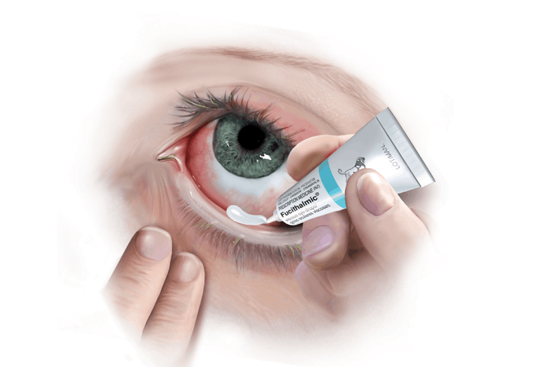 FUCITHALMIC® при лечението на бактетриалните конюнктивити