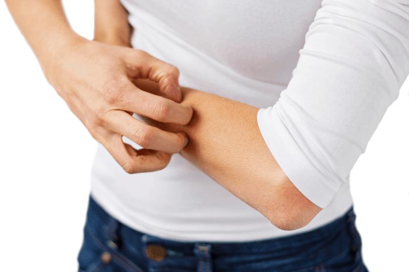 Алергичен контактен дерматит и локални антибиотици