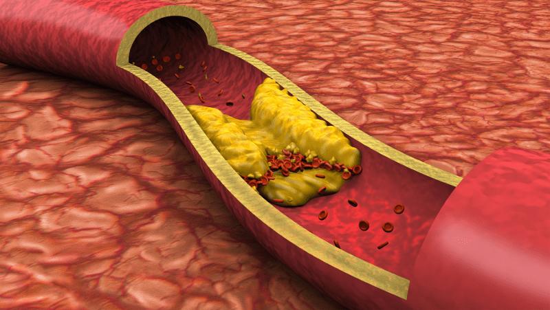 Микроциркулация и хемодинамика при артериална хипертония
