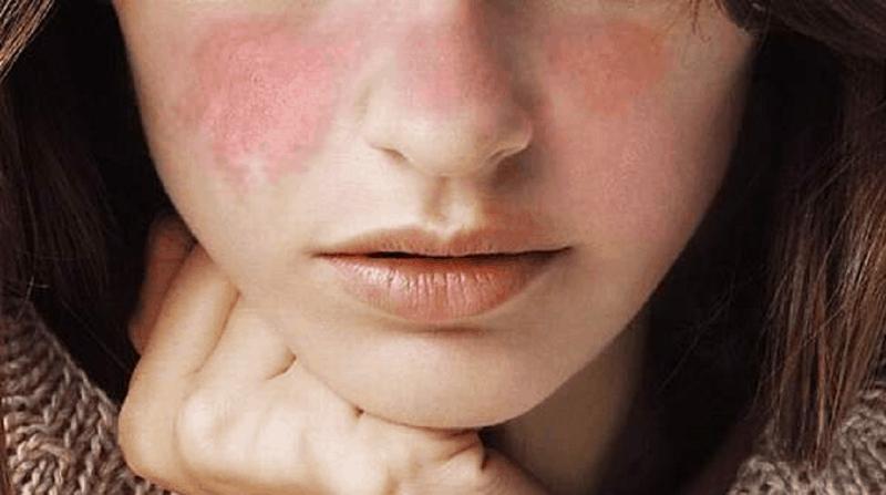 Кожни прояви при lupus erythematosus