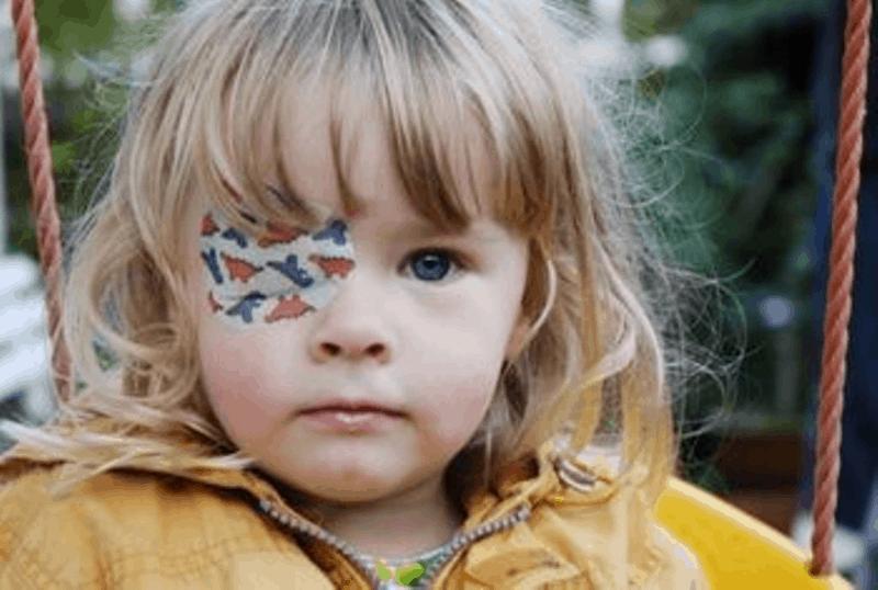 """""""Мързеливо"""" око в детската възраст"""