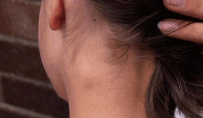 Уголемени лимфни възли, лимфаденити и лимфаденопатии в детската възраст
