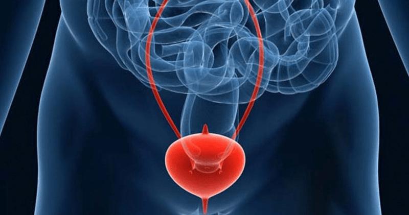 Склероза на мехурната шийка