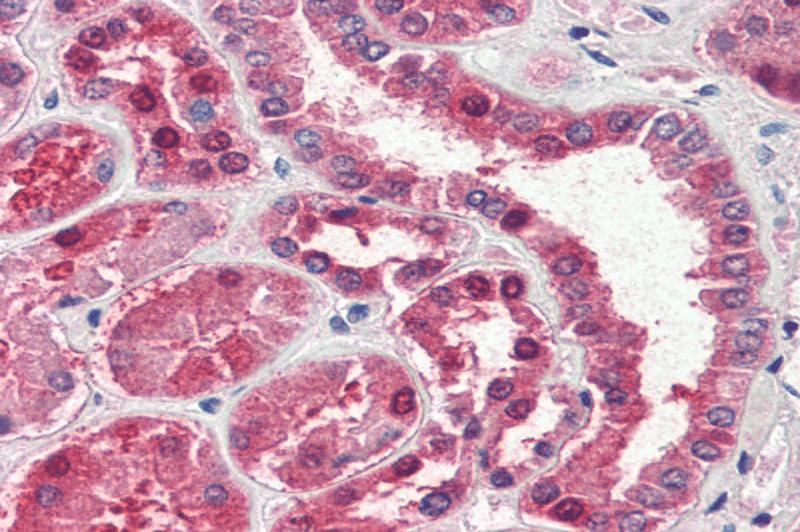 Хронично повишение на аминотрансферазите