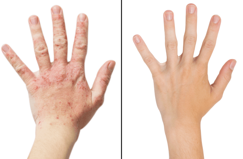 Инфекция при контактен дерматит