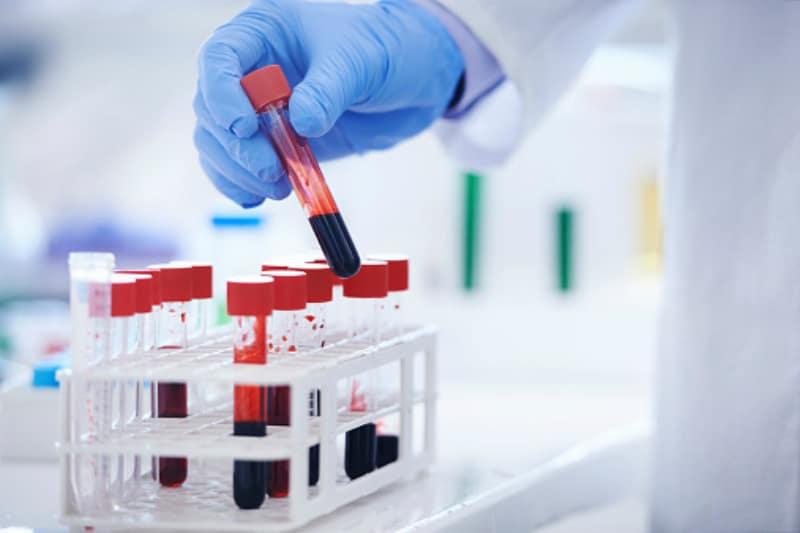 """С-реактивен протеин: """"Златен маркер"""" за възпаление и тъканно увреждане"""