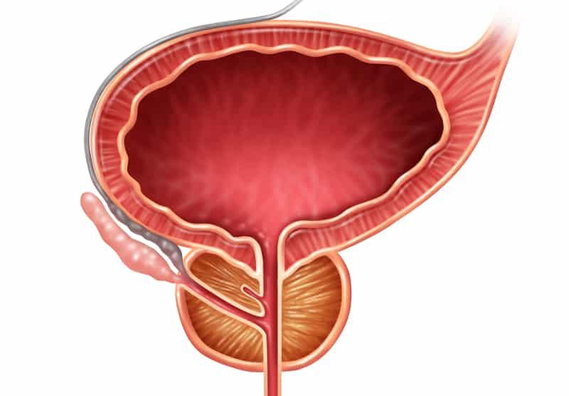 Биопсия на простатната жлеза в ежедневната практика - цел, показания, противопоказания, оперативна техника, усложнения и резултати