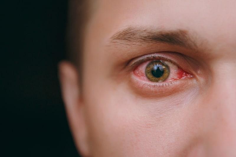 Диференциална диагноза на червено око