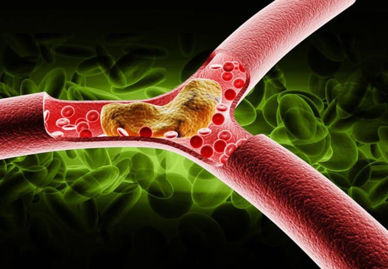 Инхибиторите на АСЕ при лечение на атеросклероза