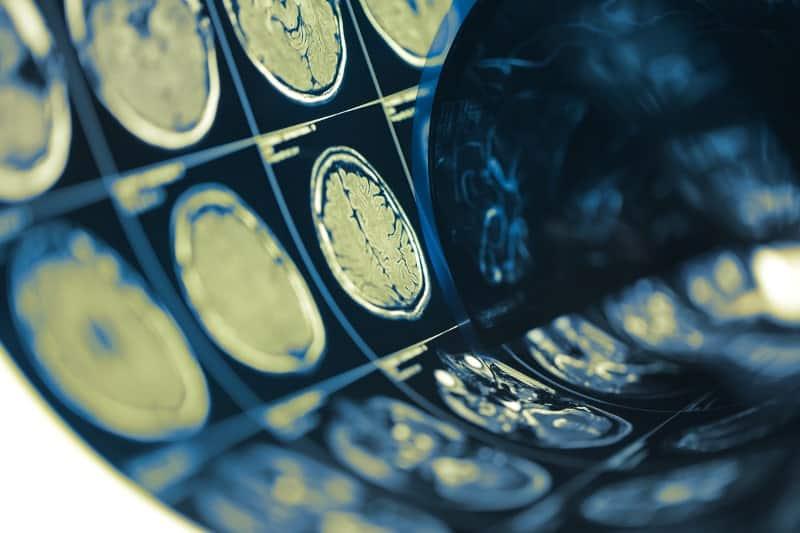 Исхемичен мозъчен инсулт - съвременно лечение