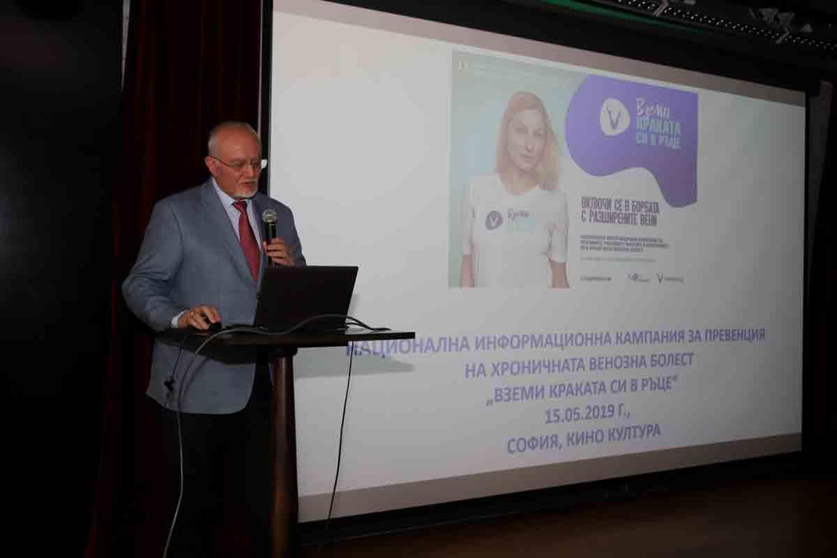 Над 50% от българите страдат от разширени вени