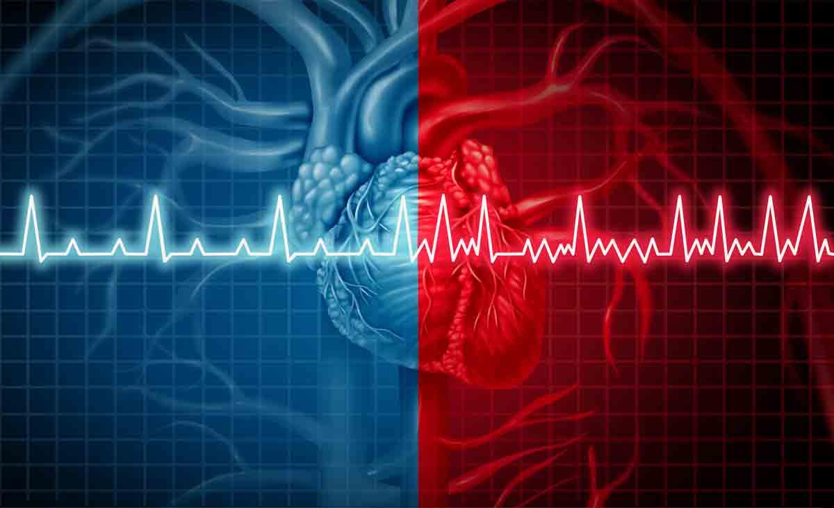 Предсърдно мъждене – профилактика на инсулт и системен емболизъм чрез НОАК, ВКА и хепарин
