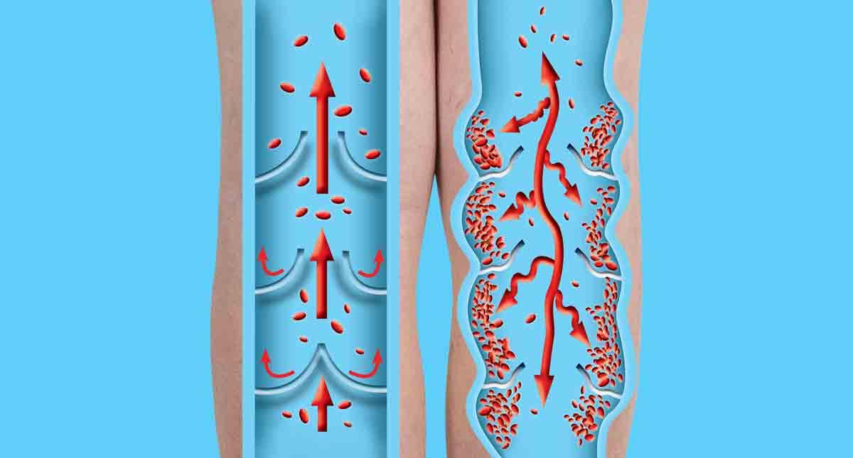 Клинични наблюдения на пациенти с хронична венозна недостатъчност (ХВН) и хронична артериална недостатъчност на крайниците (ХАНК), лекувани с Entan®
