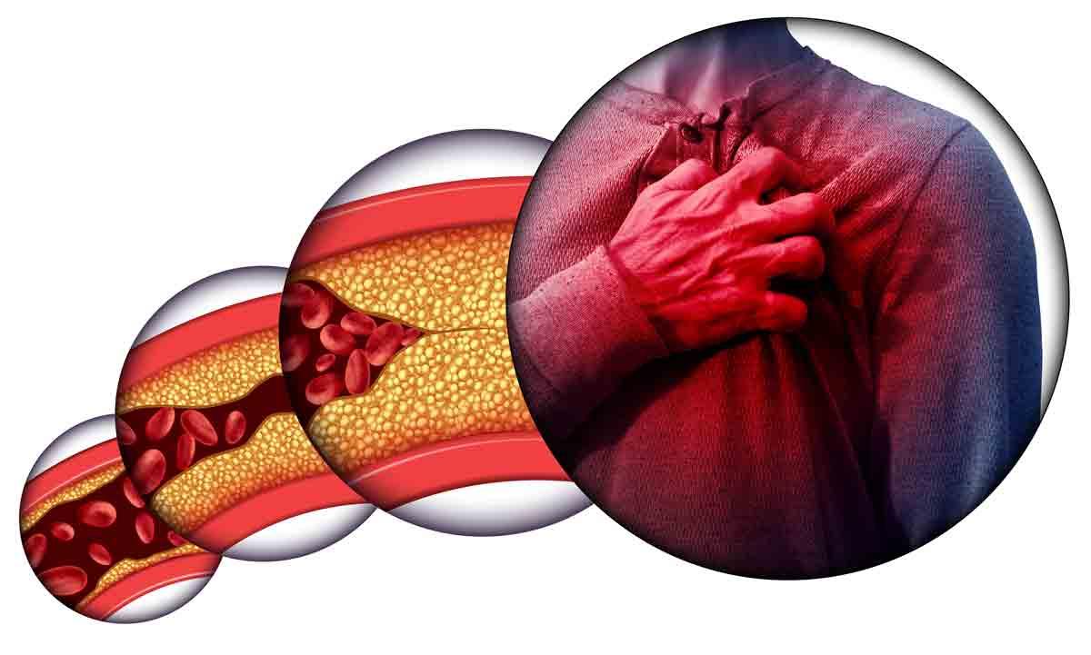 Триглицеридите като допълнителен рисков фактор за развитието на атеросклероза и сърдечносъдови заболявания