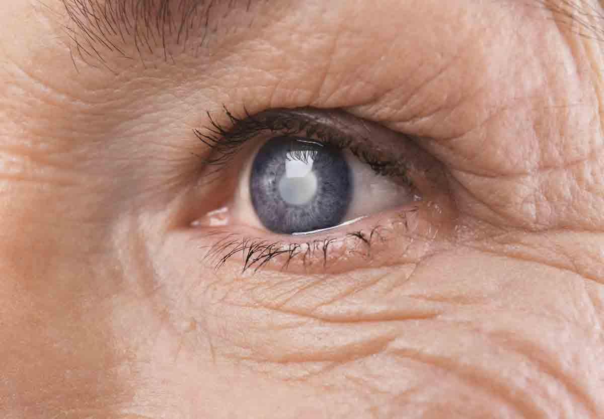 Зрителен, перцептуален и козметичен комфорт при пациенти с двустранна катаракта