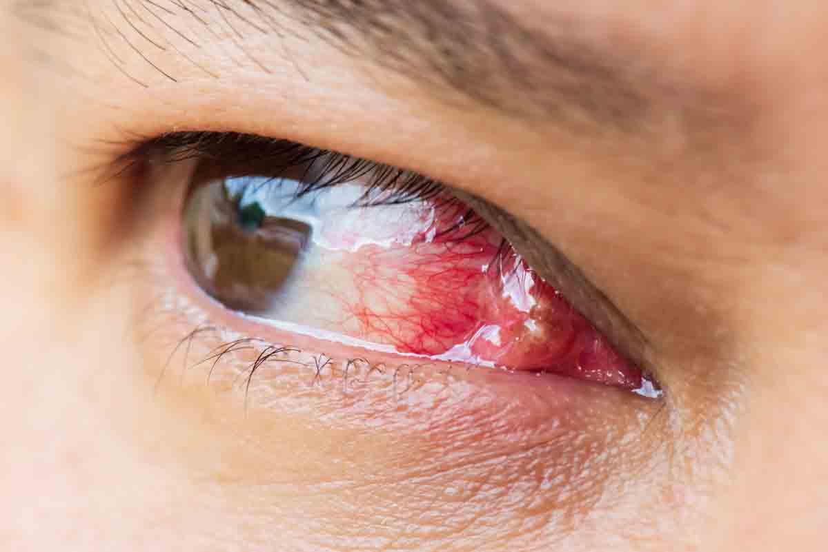 """""""Външно перде"""" /птеригиум/ - клинична изява, профилактика и съвременно лечение"""