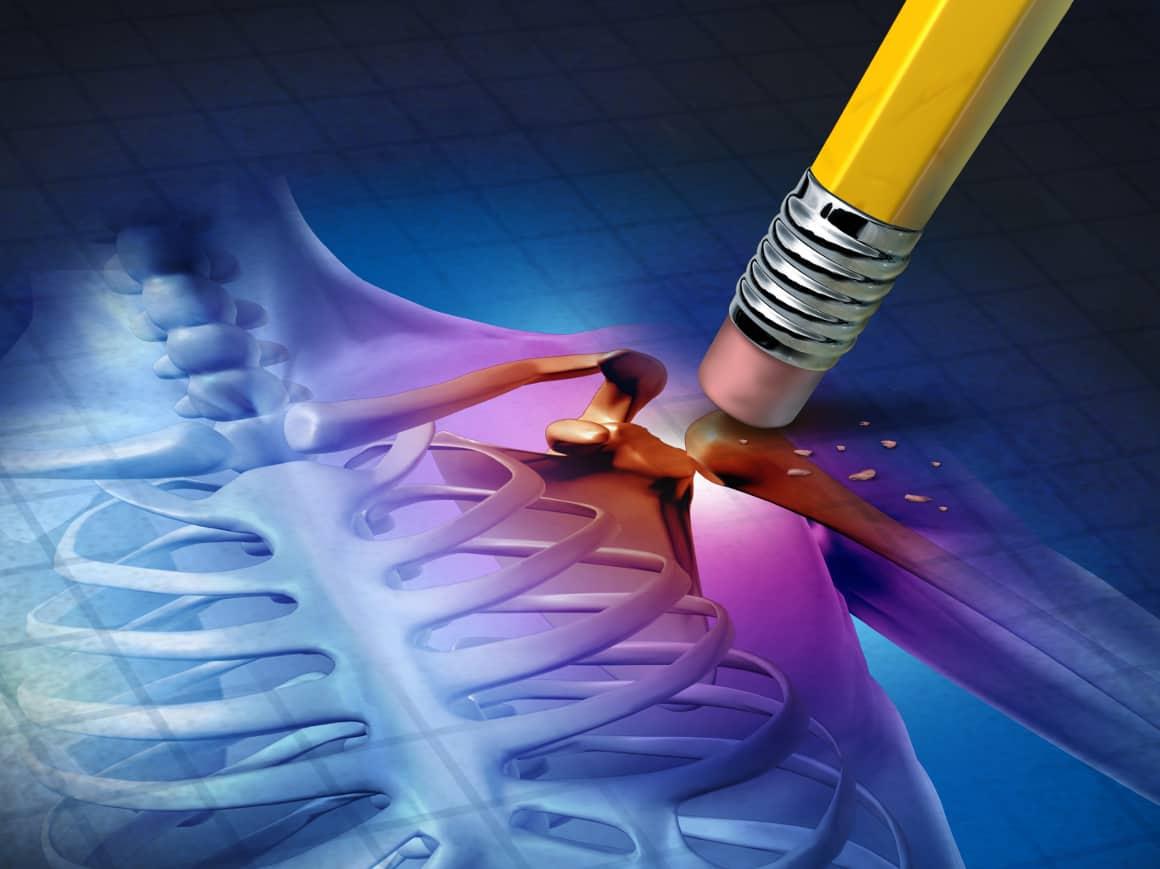 Регенераторна терапия с обогатена с тромбоцити автоложна плазма при дегенеративни заболявания на опорно-двигателния апарат