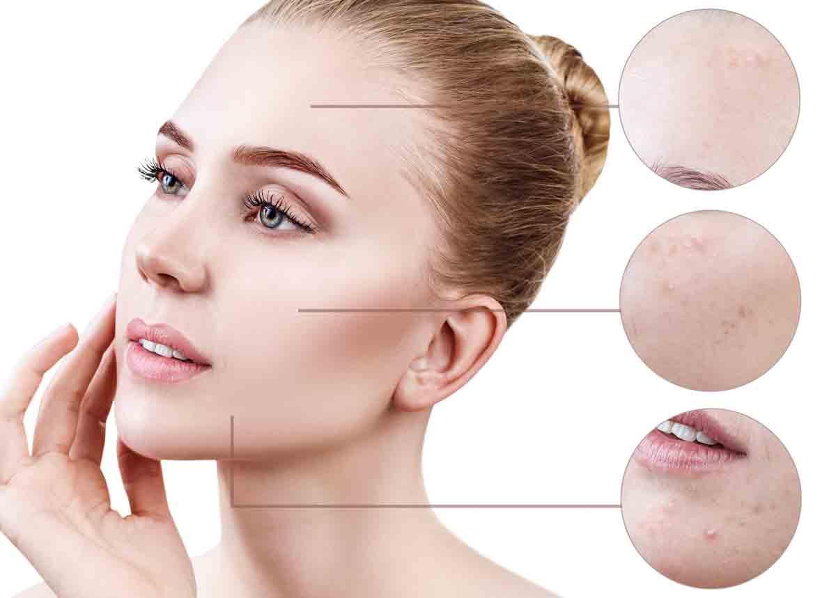 Приложение на Skinoren® при лечение на акне и мелазма