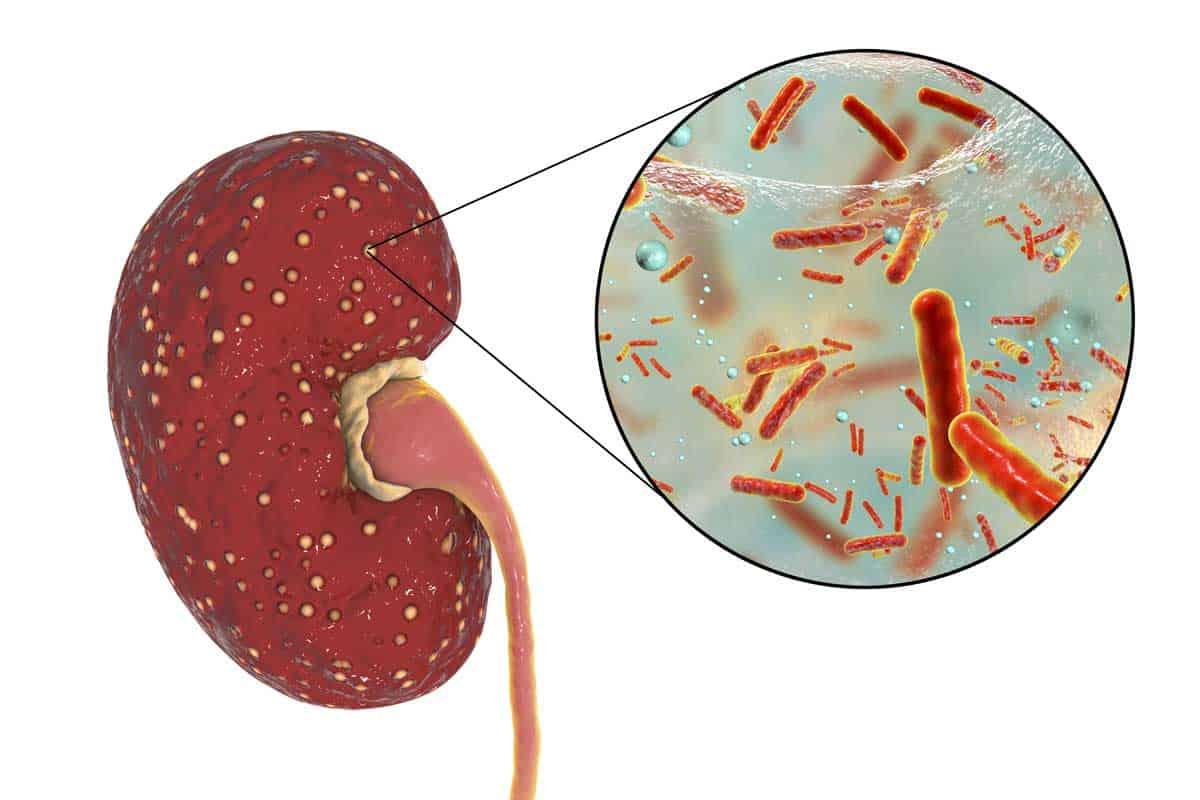 Нов поглед към инфекциите на пикочните пътища