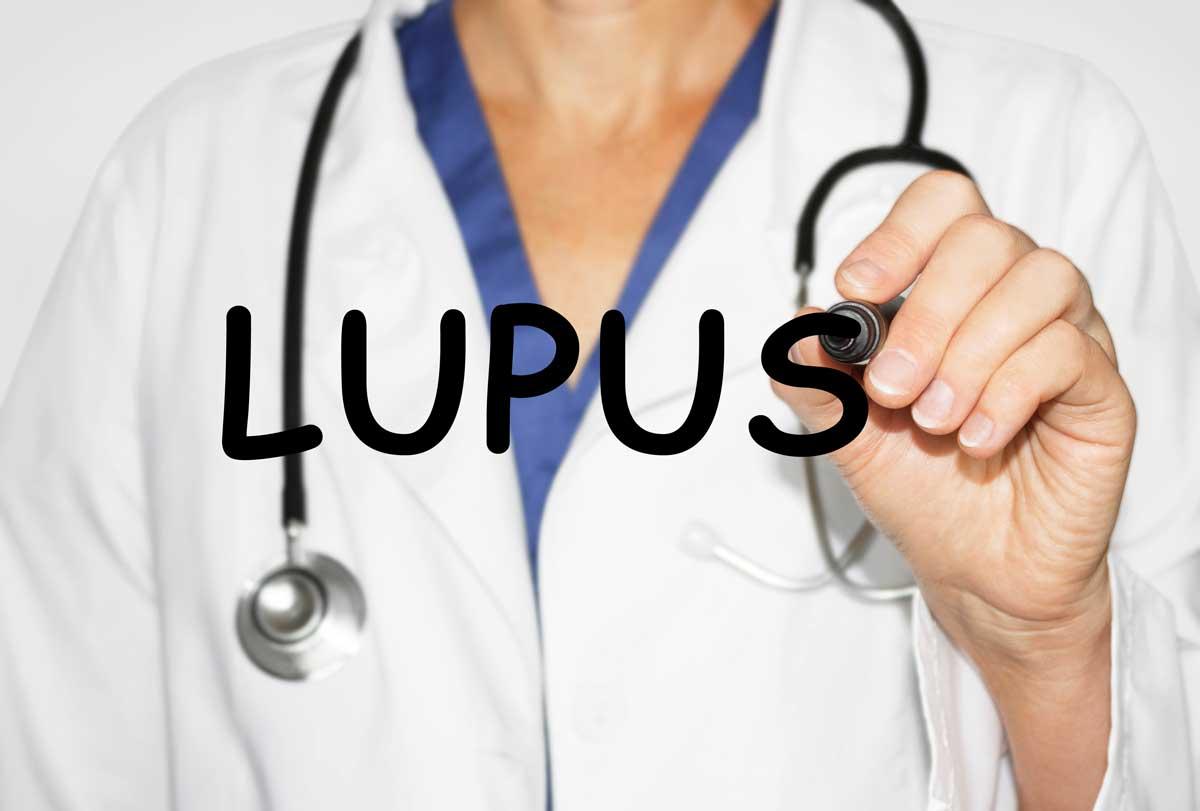 Как бихте лекували пациенти със системен лупус еритематозус? Клиничен случай и перспективи
