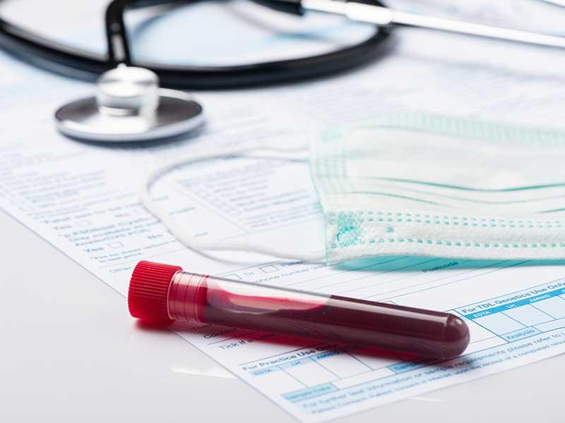 Ананиев промени заповедта за задължително лечение в болница на хора над 60 г. с COVID-19