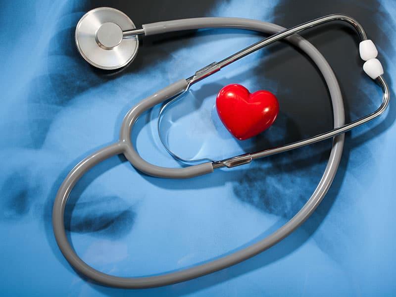 Сърдечна амилоидоза – подценявано заболяване със съвременна диагностика и лечение