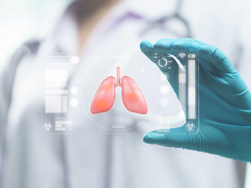 НЗОК не заплаща изследване, което показва как COVID-19 се отразява на белите дробове