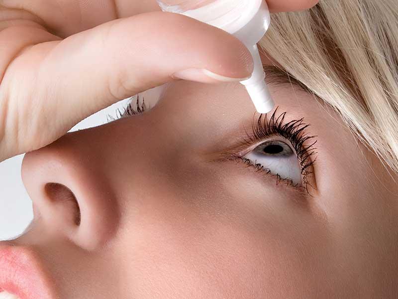 Двустранен алергичен конюнктивит, предизвикан от антиглаукомни капки