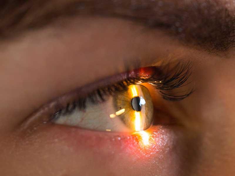 Псевдоексфолиативна глаукома – диагностика и поведение