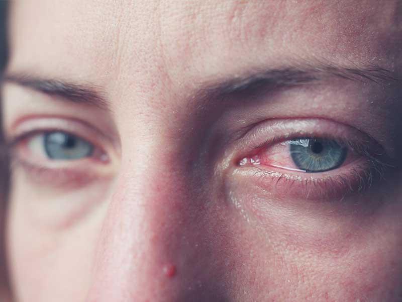 Синдром на червеното око - диференциална диагноза, причини, лечение