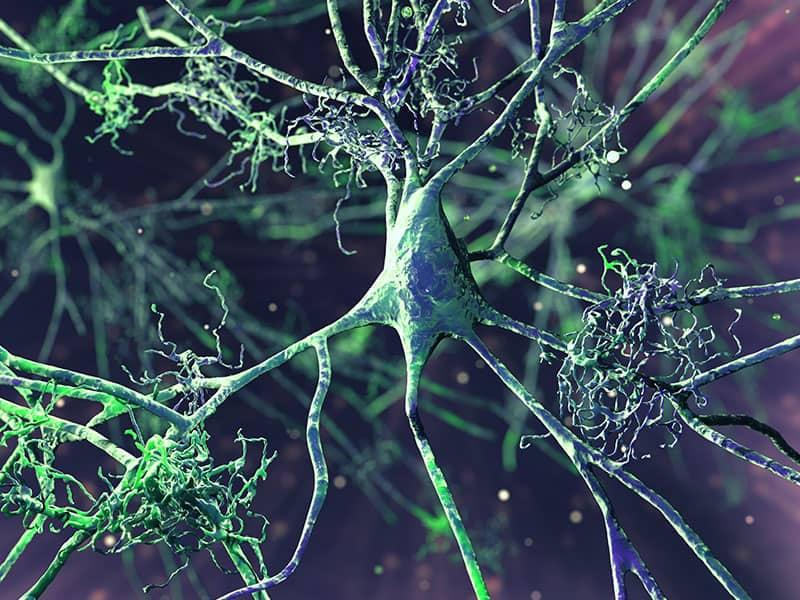 Силицият спомага за предпазване от болестта на Алцхаймер